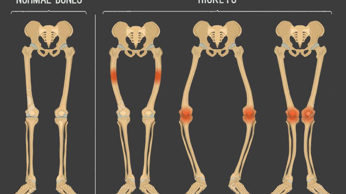 نرمی استخوان اغلب در دوران قبل از بلوغ بهوجود میآید که علت اصلی آن کمبود ویتامین D است.- دکتر نوید حسین زاده متخصص طب فیزیکی و توان بخشی در رشت