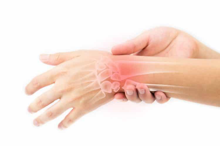 دررفتگی به دنبال فشار زیاد به مفصلها ایجاد میگردد، اما پیچ خوردگی به دنبال کشیدگی ناگهانی یا چرخش بیش از حد مچ دست در ناحیه مفصل ایجاد میشود. - دکتر نوید حسینزاده متخصص طب فیزیکی و توانبخشی
