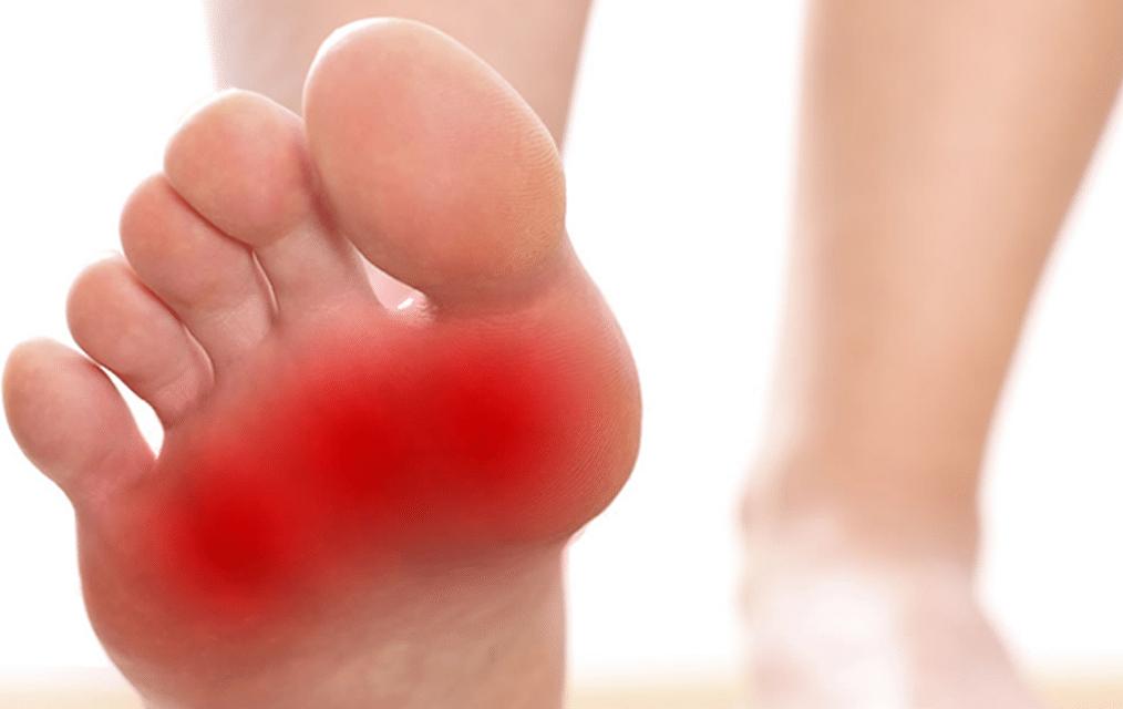 احساس سوزش و درد در کف پا به این معنا است که کف پا دچار بیماری شده است.متخصص طب فیزیکی و توانبخشی-دکتر نوید حسینزاده
