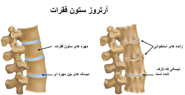 اسپوندیلوز یک بیماری است که در اصطلاح به آن آرتروز ستون فقرات گفته میشود