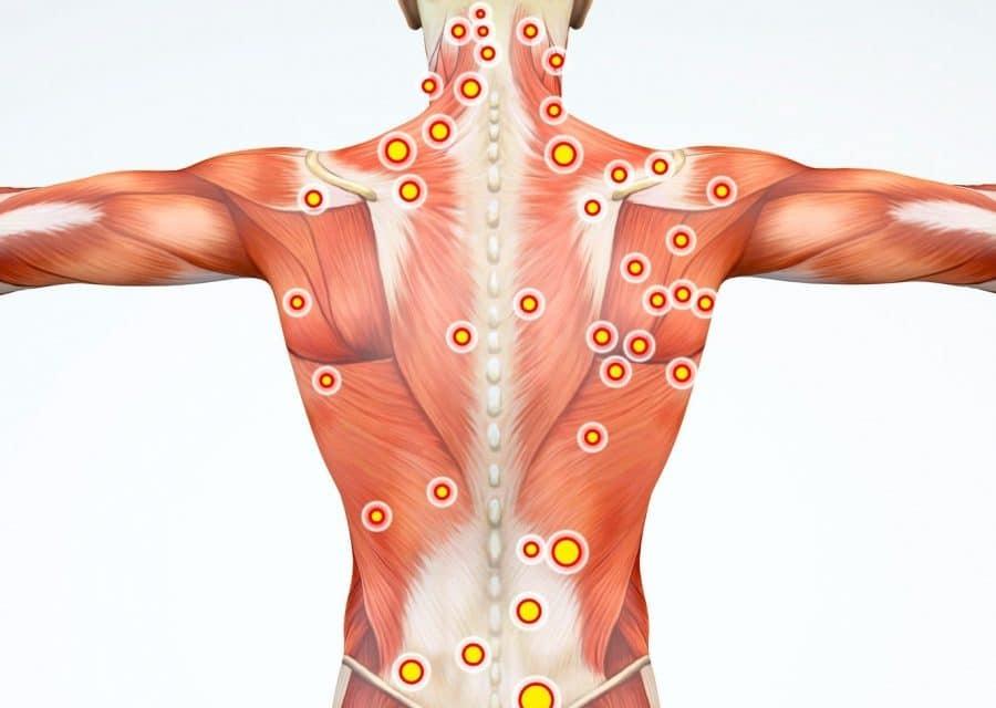 سندرم درد میوفاسیالسندرمی بسیار شایع در دنیاست و این در حالیست که از سوی بیماران و حتی برخی پزشکان کمتر شناخته شده است. البته متخصصین طب فیزیکی و توانبخشی با این عارضه آشنایی کامل دارند.